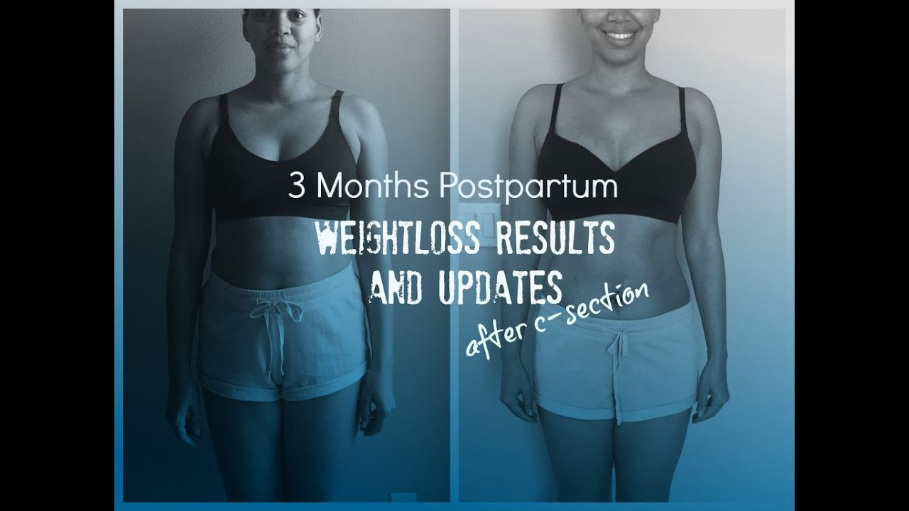 3 Months Postpartum Weightloss Results And Updates After Csection