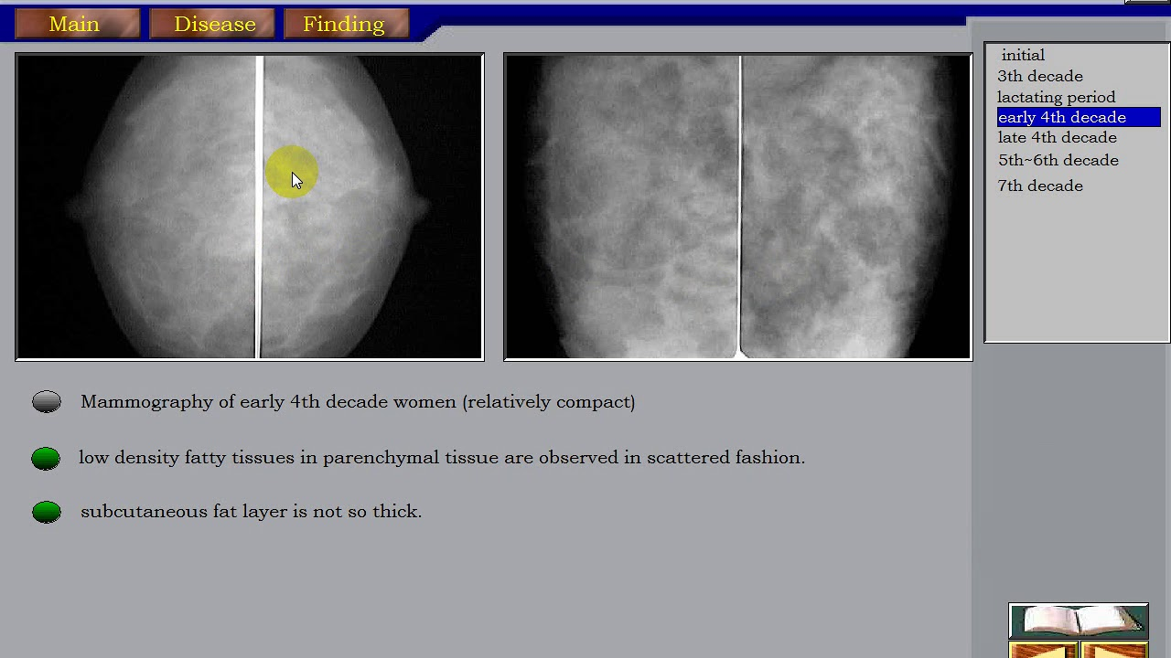 breast ultrasound part 1 normal breast ultrasound and mammogram