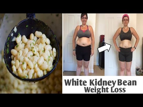 Weight Loss Using White Kidney Bean Extract, It Works!