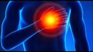 Arterias corazón pequeñas alrededor del