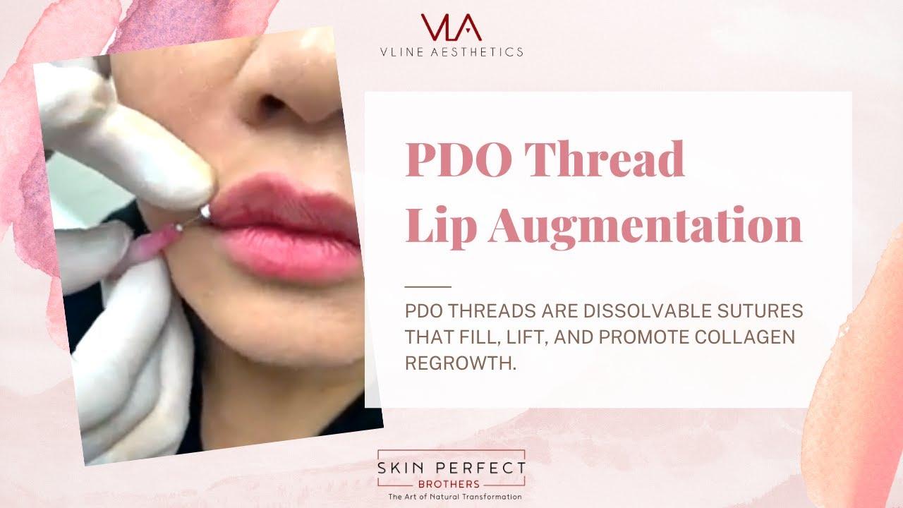 PDO Thread Lip Augmentation - YouTube