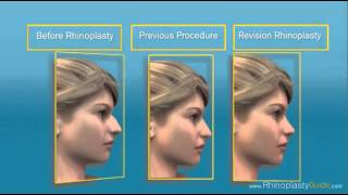 What is Rhinoplasty?