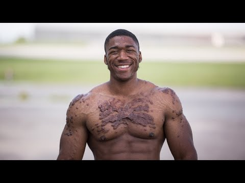 My Scars Won't Kill My Bodybuilding Dreams | UNBREAKABLE ME