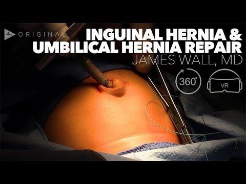 Inguinal Hernia & Umbilical Hernia Repair Dr. James Wall