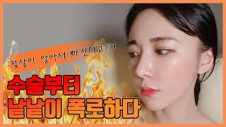 [ENG CC][얼굴지방흡입 브이라인+이마,앞볼 지방이…