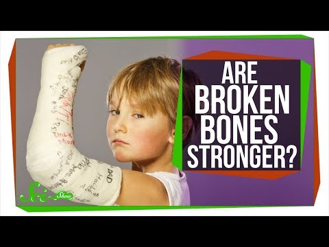 Are Broken Bones Stronger After They Heal?