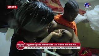 REGARD SOCIAL (Hypertrophie Mammaire: La honte de ma vie) DU 20 FEVRIER 2020  EQUINOXE TV