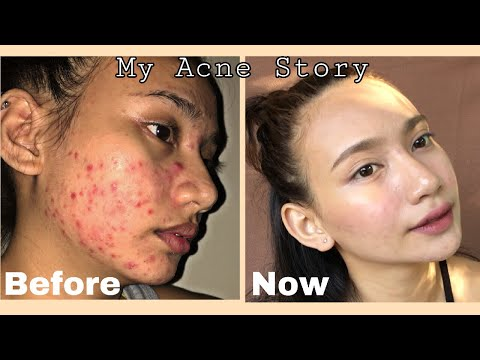 How I Cleared My Skin in 2 Months Using Affordable Products + Pictures | Philippines