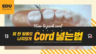 [Edu] 치과위생사 직장인 교육 l 피 한 방울 나지않게 Cord 넣는 TIP
