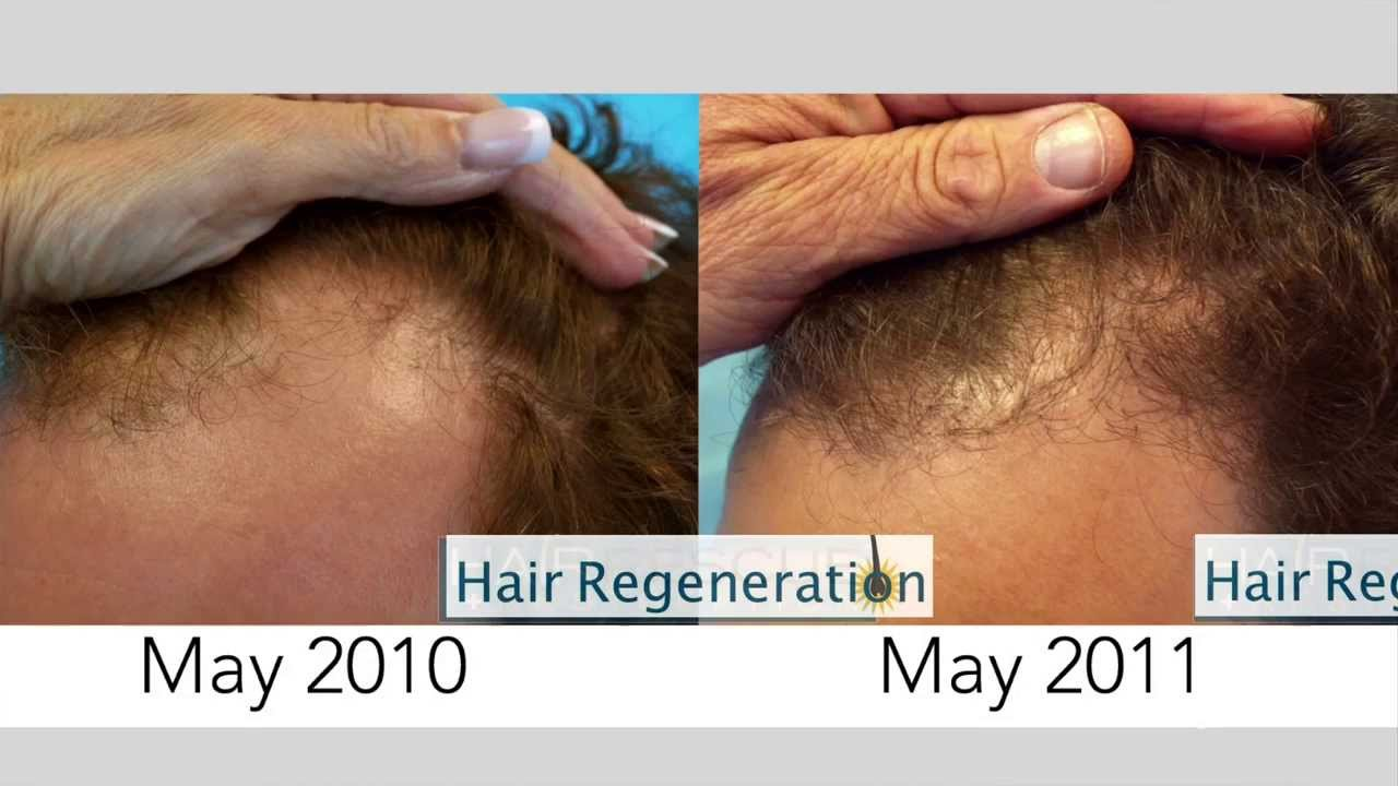 Hair Regeneration with ACell Extracellular Matrix One Year