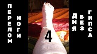 Перелом ноги_4 дня после снятия гипса(, 2015-08-01T16:08:52.000Z)