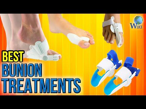 10 Best Bunion Treatments 2017