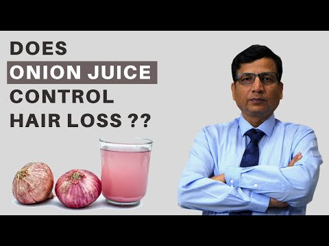 Does Onion Juice Control Hair Loss and Growth in Hindi - Know The Scientific Reason | India