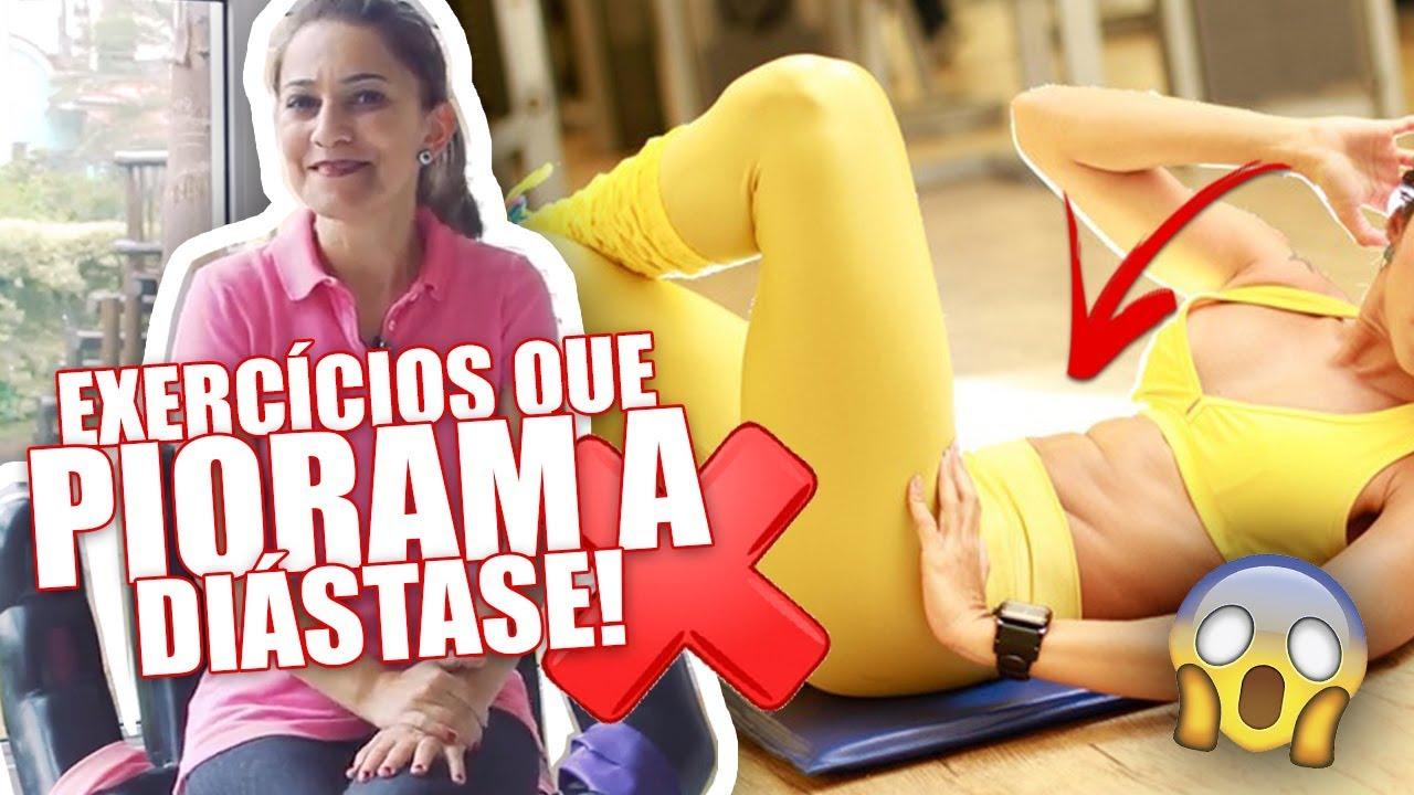 5b98e6e18 DIÁSTASE  Exercícios que Pioram e que NÃO DEVEM SER FEITOS! Gizele Monteiro