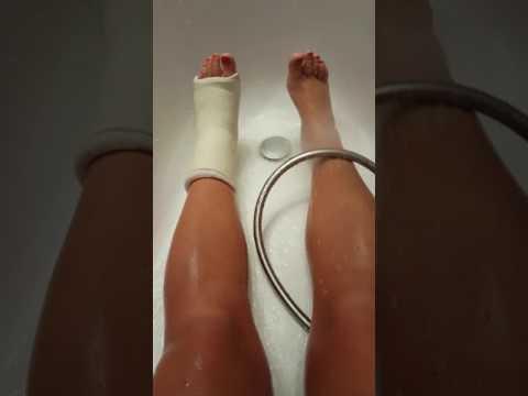 Гипс при переломе, как помыть