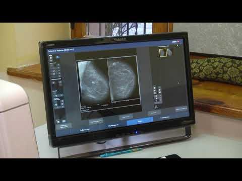 Сфера-ТВ: У Рівному проводитимуть цифрову мамографію