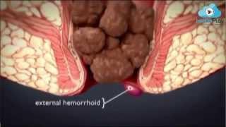 Op.Dr.Kadir Uskuay - Hemoroid Çeşitleri Nelerdir?