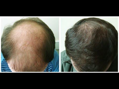 Лечение волос, обучение трихологии, кератиновое