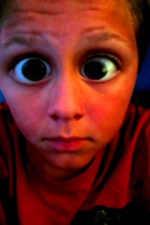 Worlds Biggest Eyes!!!! - YouTube Worlds Biggest Eyes On A Human