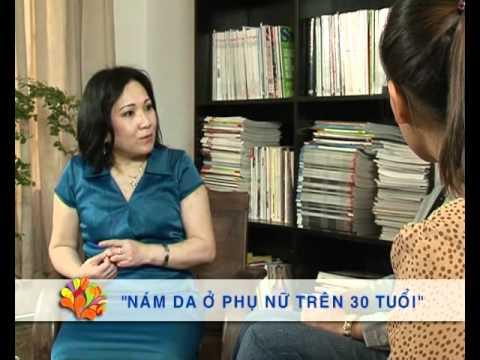 Xử lý nám da cho phụ nữ tuổi 30 – Vui Sống Mỗi Ngày [VTV3 – 05.06.2012]