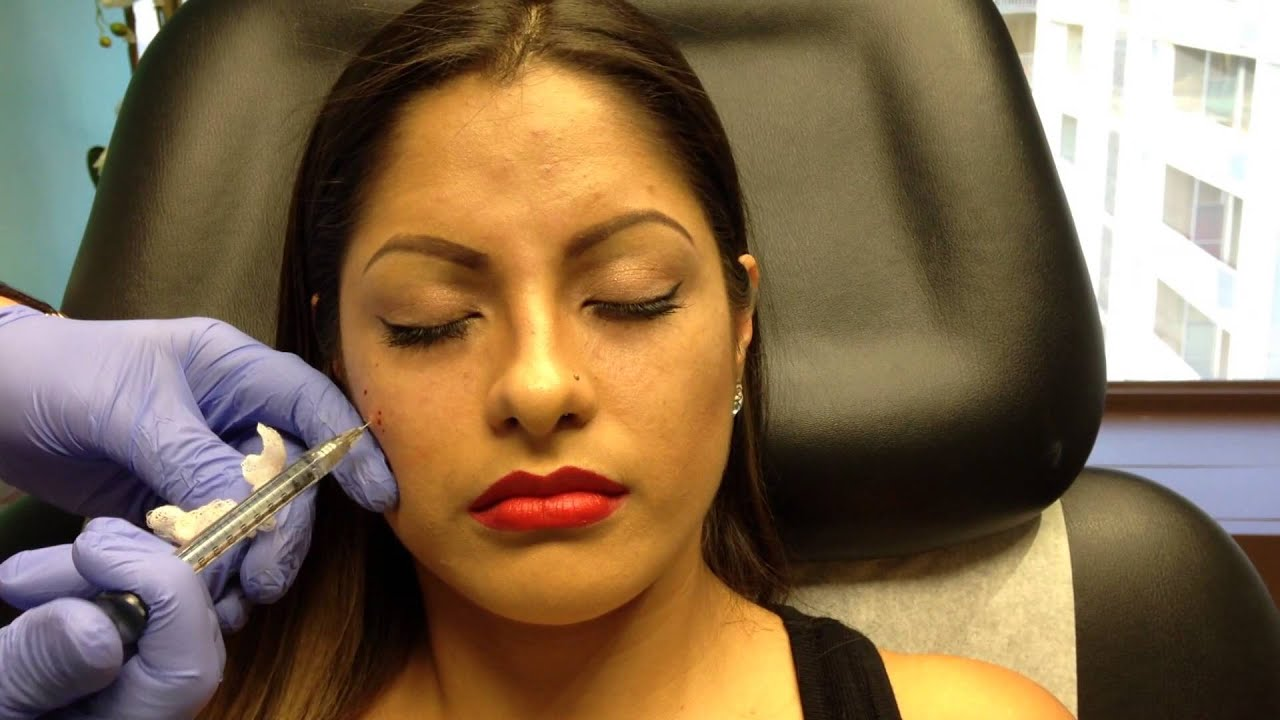 Botox & Juvederm Voluma Injections for Young Women
