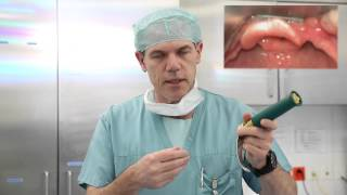#3  Laryngoskopie