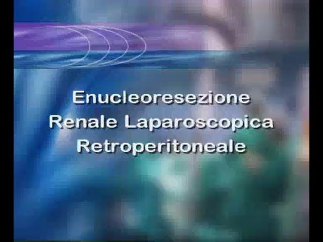 Laparoscopic surgery - Enucleoresezione renale laparoscopica retroperitoneale