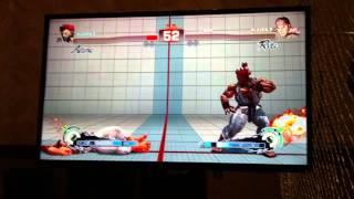 Moneymatch LLL.MBR (Akuma) vs LU| Alex Valle (Ryu)