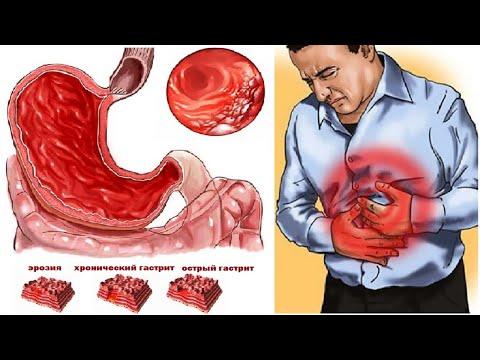Гастрит. Лечебные травы. Лечение гастрита, язвы, изжоги, холецистита, женских  болезней