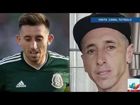 Así luce Hector Herrera tras someterse a cirugía de Nariz y Orejas