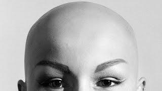 Three Bald Women