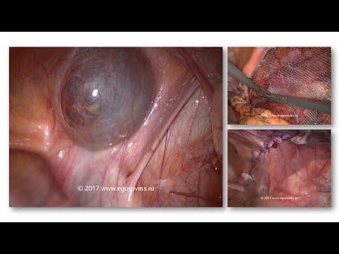 Киста круглой связки матки, паховая грыжа справа (жен). Удаление кисты, герниопластика (TAPP).