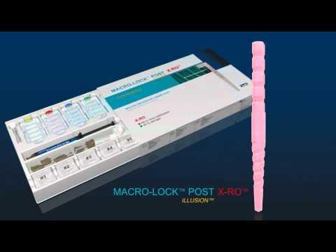 RTD MACRO-LOCK POST® ILLUSION® X-RO® - Parte 1/11