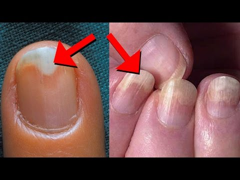 10 Things Your Nails Say About Your Health