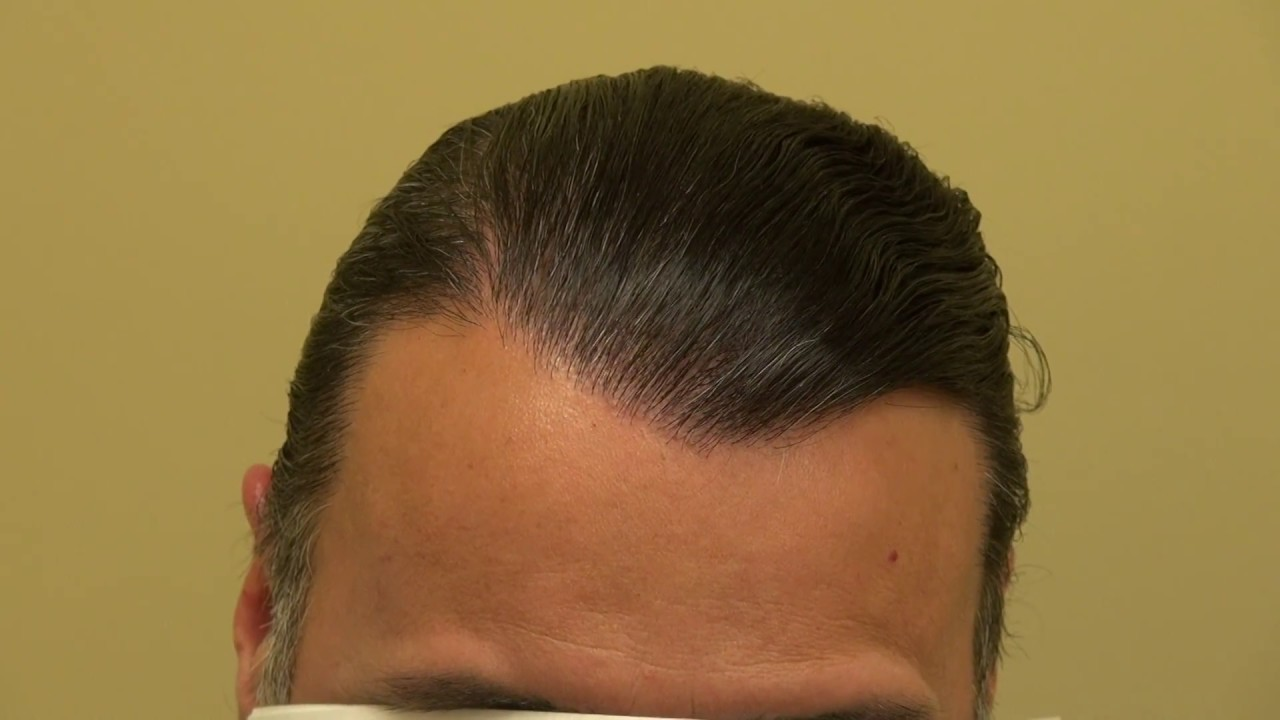 Advance hair loss before after hair transplant surgery hairline dr advance hair loss before after hair transplant surgery hairline drdiep httpmhtaclinic youtube urmus Gallery