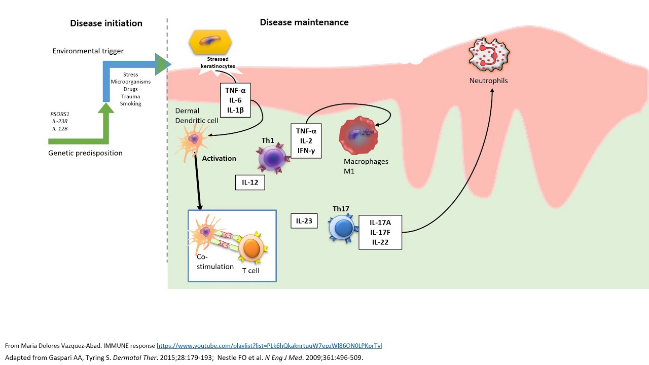 psoriasis and immune system)