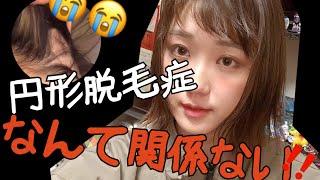 【円形脱毛症】十円ハゲなんか知らんわ!ヘアアレンジさせぇ!【ヤケクソ】 thumbnail