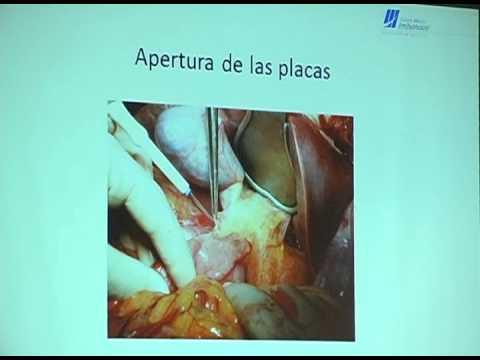 Anatomía Quirurgica del hígado - Centro Médico Imbanaco - YouTube