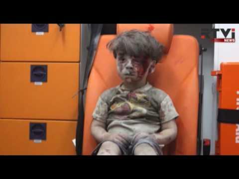 Телеведущий рассказал о самом известном сирийском мальчике