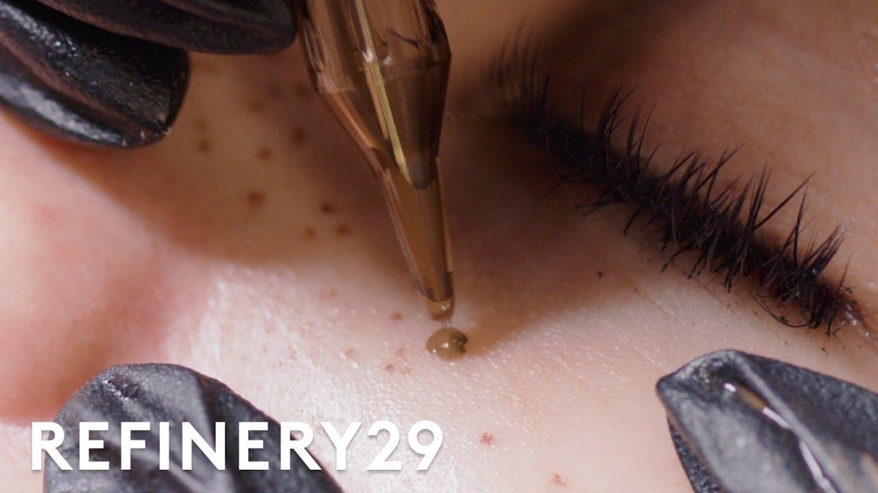 I Got Faux Freckles Tattooed On My Face   Macro Beauty   Refinery29