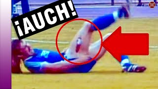 THE WORST SOCCER INJURIES 2017