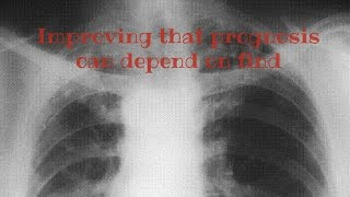 Asbestosis prognosis