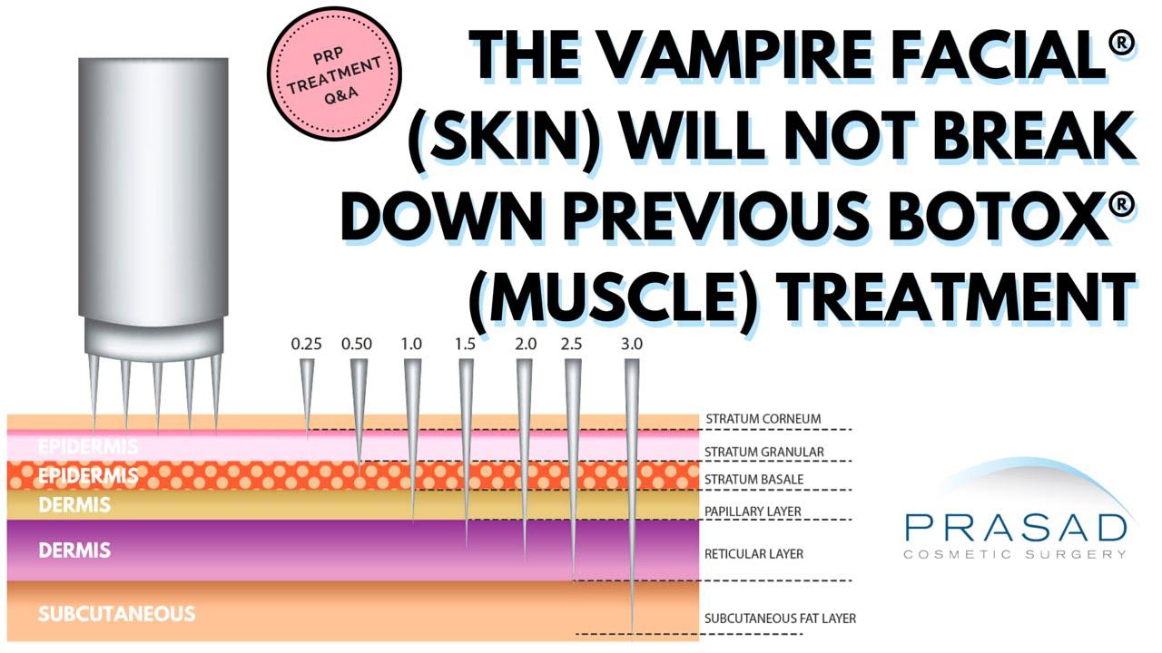 The Vampire Facial Skin Layers Will Not Breakdown Botox Treatment