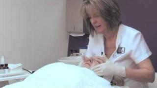 Stradbrook Skin Microdermabrasion thumbnail