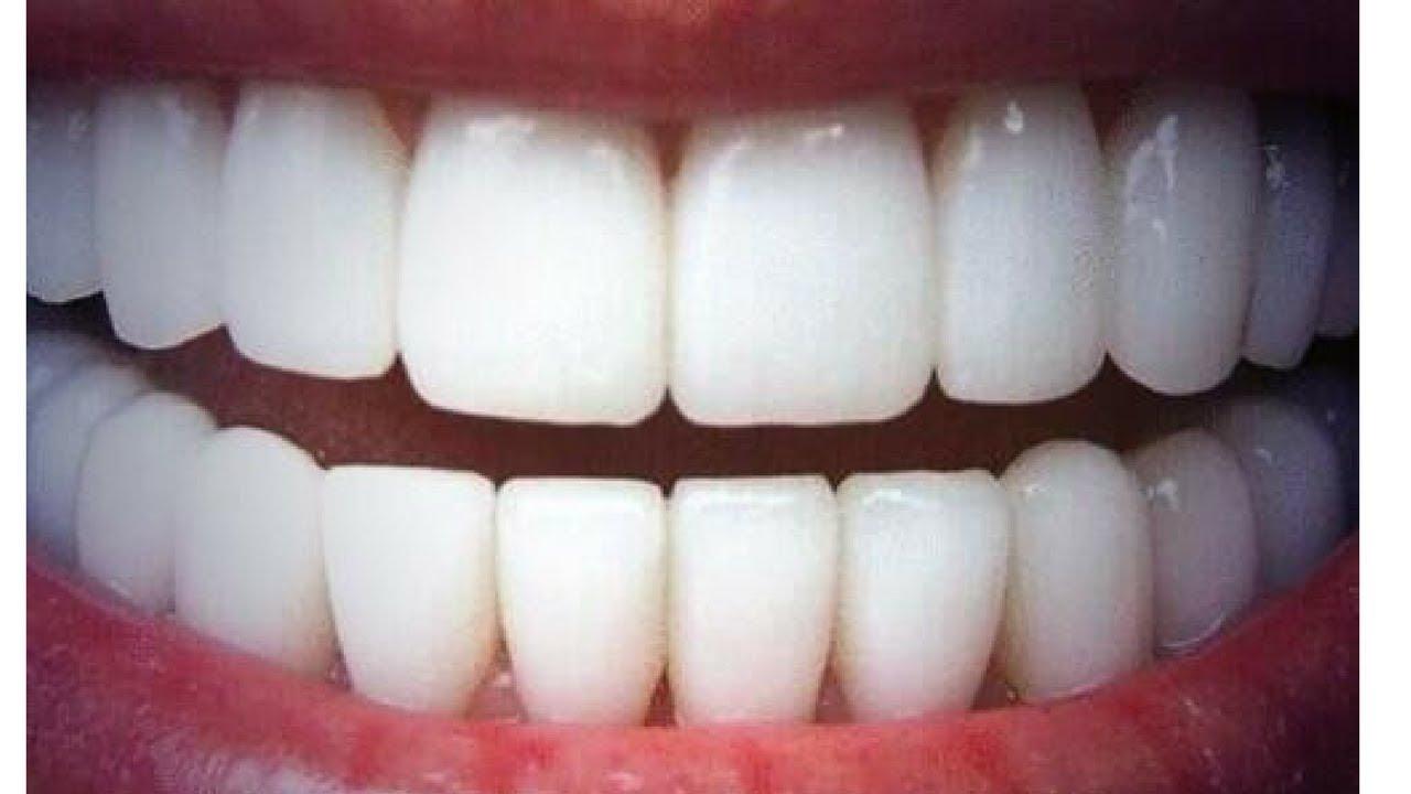 blanchiment des dents aluminium
