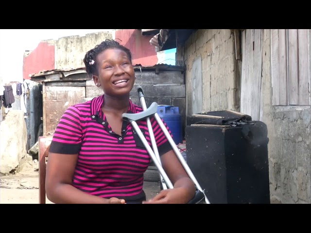 Chidera Favour Enwere needs Prosthesis, a home and University education