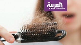 صباح العربية: هل من أغذية تقوي الشعر وتخفف تساقطه؟