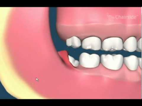 Impacted Wisdom Teeth Removal Animation)