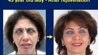 Facelift Surgery, Best Anti-Aging Wrinkle Treatment Rhytidectomy Mumbai India