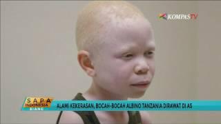 Bocah Albino Diburu Anggota Tubuhnya untuk Ritual Mistis.